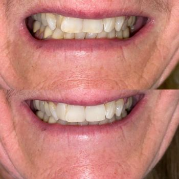 Before and after composite veneers to mask tooth crowding